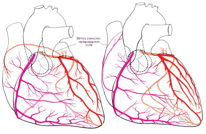 артерий и ее ветвей.