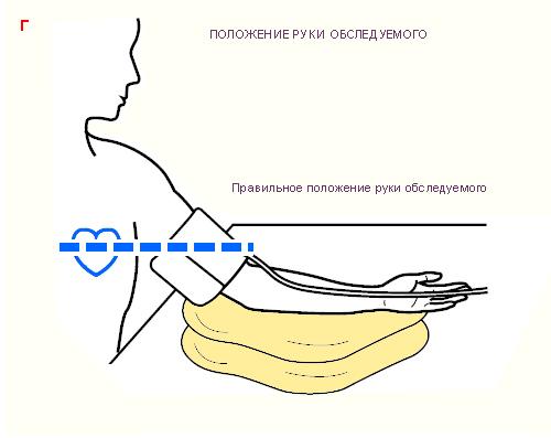 Схема. Измерение артериального
