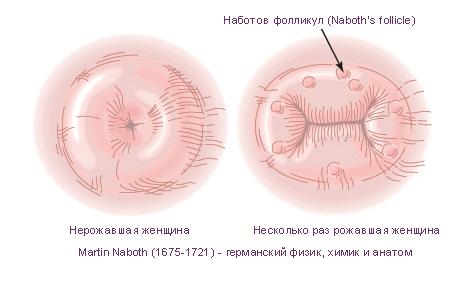 фото женской матки крупным планом рожавшей и неражавшей