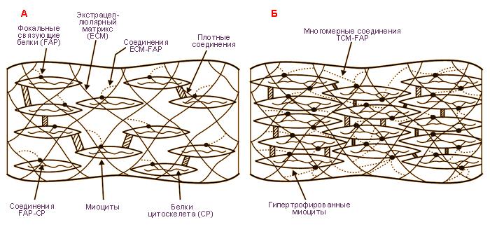 миометрий с фиброзным компонентом