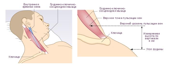 Вены на грудной клетке у женщин причины