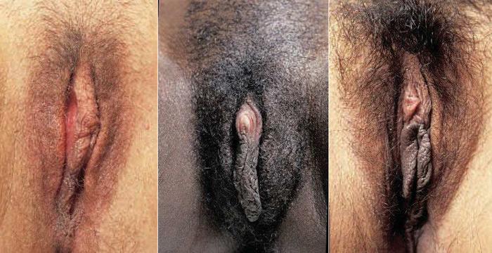 формы женских гениталий фото